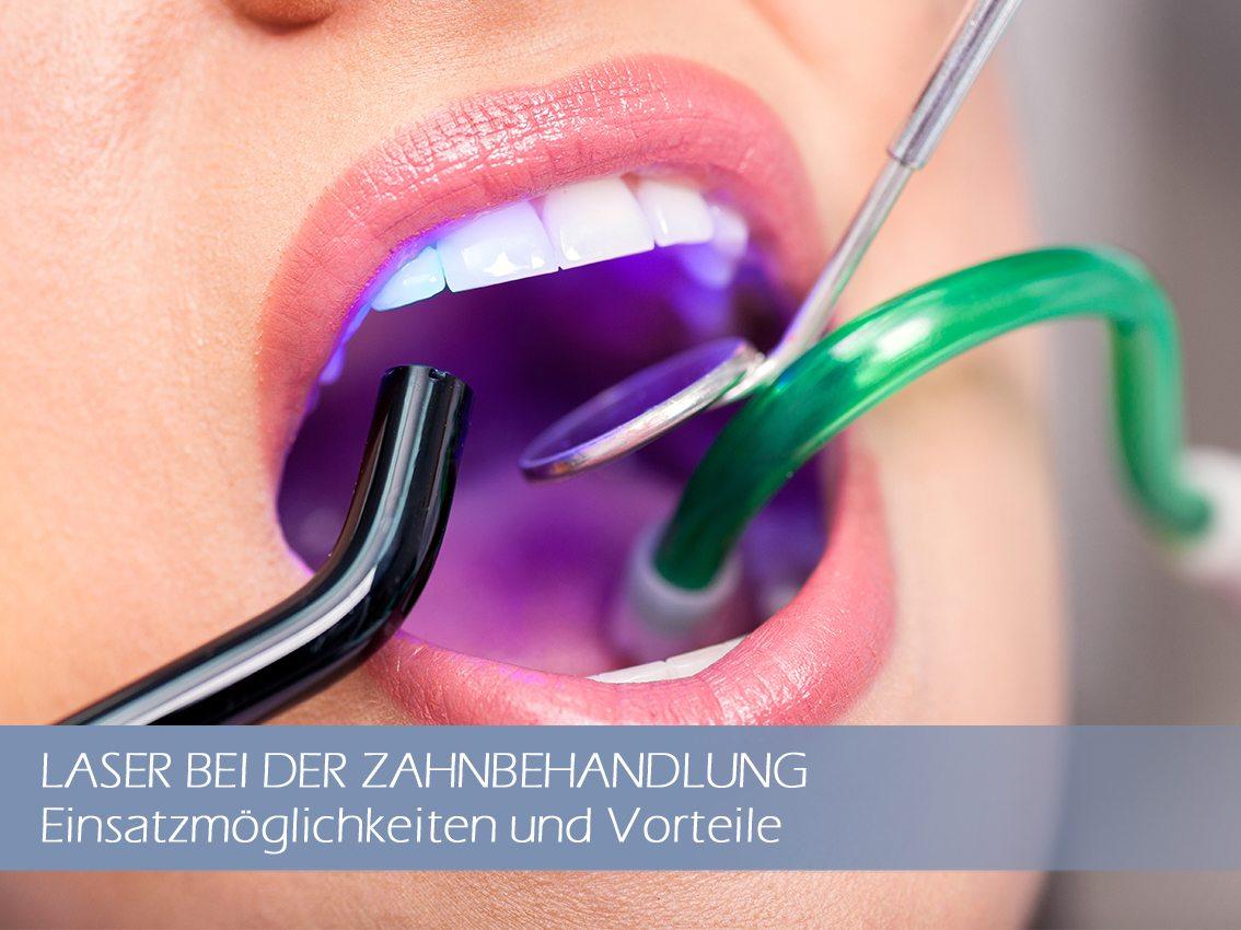 Zahnbehandlung mit dem Laser